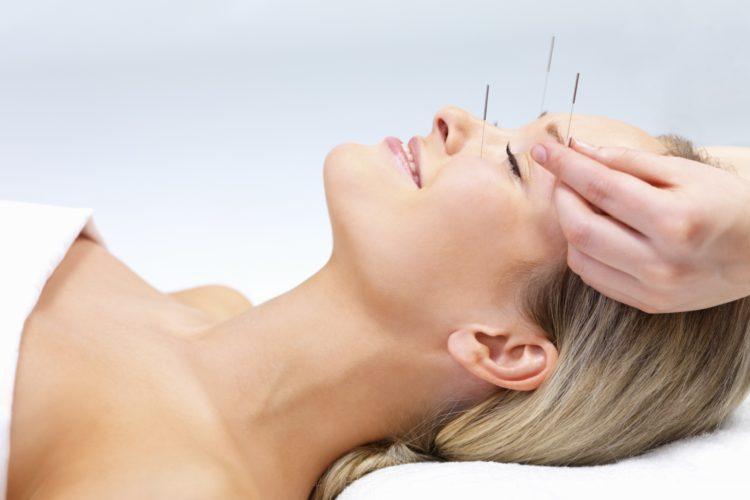 Acupunctura alternativa
