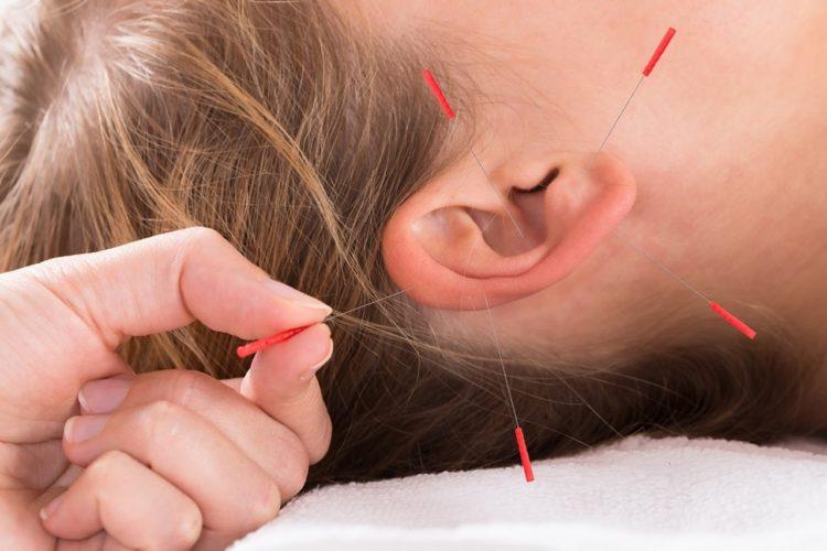 acupuntura 3